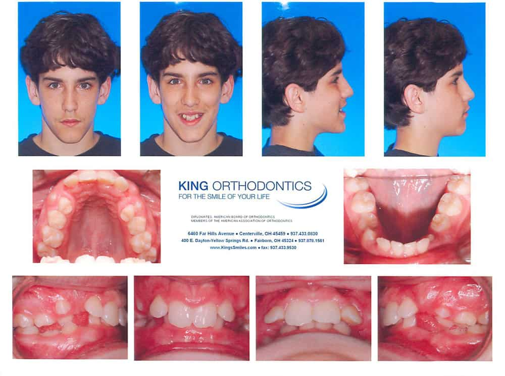 king orthodontics - before orthodontic treatments